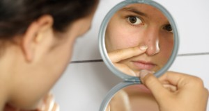 acne-enceinte
